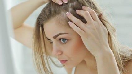 Karbonat saç kepeğini geçirir mi?