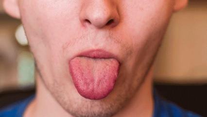 Dil mantarı nedir? Belirtileri nelerdir ve tedavisi var mıdır?