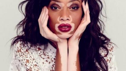 Vitiligo (Beyazlama hastalığı) nedir?