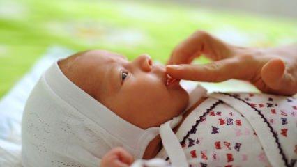 Bebeklerde aft yaralarını geçiren doğal kürler