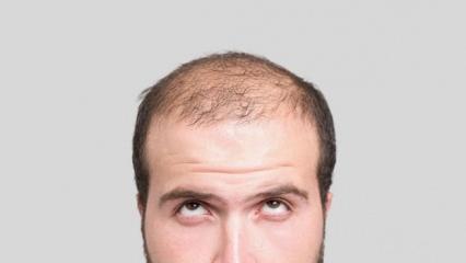 Rüyada saç dökülmesi görmek nasıl yorumlanır? Rüyada dökülen saçın tabiri..