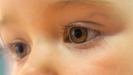 Bebeklerde göz rengi hesaplama formülü