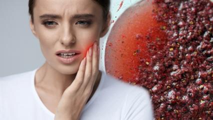 20 yaş dişleri çekilmeli mi? 20'lik diş ağrısına ne iyi gelir?