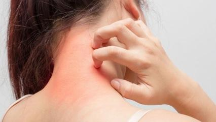 Mantar enfeksiyonu nedir? Kaç çeşit mantar enfeksiyonu hastalığı vardır?