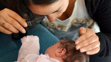 Bebeklerde körlük tehlikesi; Prematüre retinopatisi (ROP) nedir?