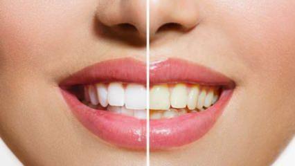 Doğal, etkili ve kalıcı diş beyazlatma yöntemleri! Bembeyaz dişler...