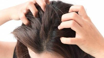 Saçtaki beyazlar nasıl gider? Saç beyazlamasını geciktirmenin yolu