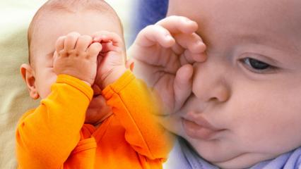 Bebeklerde göz yanmasına doğal çözümler