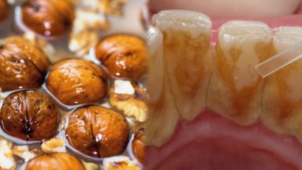Diş taşı neden olur? Diş taşları doğal yolla nasıl temizlenir?