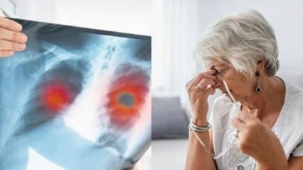 Koah hastalığı nedir? Tedavisi var mı? Koah hastalığı belirtileri?