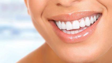 Dişler doğal yöntemlerle en kolay nasıl beyazlar?