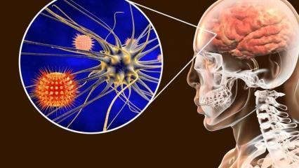 Menenjit belirtileri neledir? Menenjit tedavisi var  mıdır?