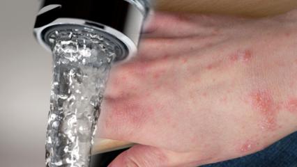 Su alerjisi nedir? Su alerjisinin belirtileri nelerdir ve tedavisi var mıdır?