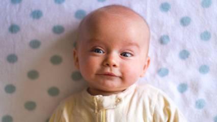 Bebeklerin saçları nasıl hızlı uzar? Bebeklerde saç uzatma yöntemleri