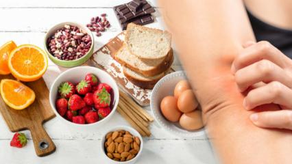 Besin alerjisi nedir? Besin alerjisi kimlerde görülür ve belirtileri nelerdir?