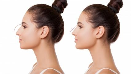 Burun ameliyatı nasıl yapılır? Burun estetiği ameliyatı hangi durumlarda yapılır?