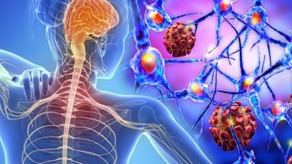 MS hastalığı nedir ve kimler de görülür? MS hastalığının belirtileri nelerdir?