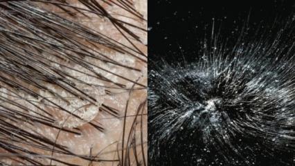 Kepek nasıl geçer | Saçta yağlı kepek ve kaşıntı için çözüm - nasıl giderilir...