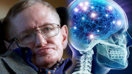ALS hastalığı nedir? ALS hastalığının belirtileri ve tedavi yöntemleri nelerdir?