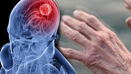 Parkinson hastalığı nedir? Parkinsonun belirtileri nelerdir? Parkinson nasıl tedavi edilir?