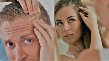 Saç dökülmesi sebepleri - tedavisi   Artık saç dökülmesini önlemek için...