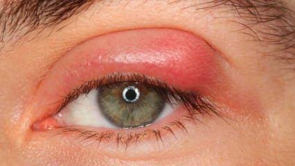 Uzmanlar uyardı! İri gözler tiroit hastalığının habercisi...