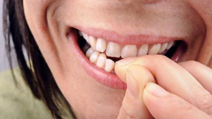 Tırnak yeme hastalığı nedir? Tırnak yeme hangi hastalıklara neden olur?