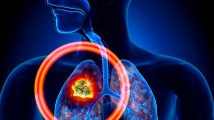 Akciğer kanserinin belirtileri nelerdir? Akciğer kanseri tedavisi var mıdır? Akciğer kanserini önlemek için...