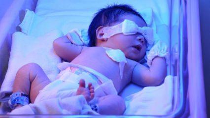 Yenidoğan sarılığı nedir? Bebeklerde sarılık evde nasıl geçer? Bebeklerde sarılık derecesi