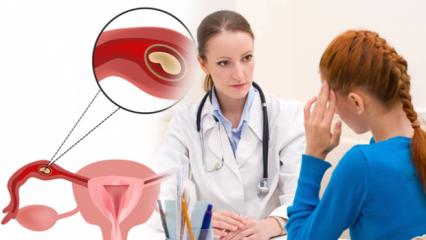 Dış gebelik (Ektobik gebelik) nedir, neden olur? Dış gebelik belirtileri neler, nasıl sonlandırılır?