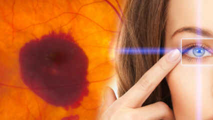 Sarı nokta hastalığı nedir? Sarı nokta hastalığının belirtileri nelerdir?