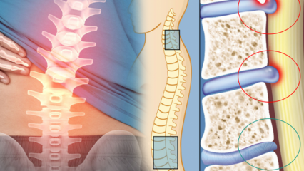 Omurilik daralması nedir? Omurilik daralması belirtileri nelerdir? Omurilik daralmasının tedavisi var mıdır?