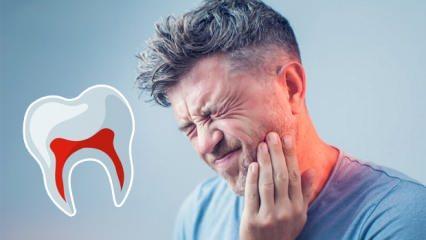 Diş ağrısı nasıl geçer? Gece şiddetli diş ağrısını ilaçsız geçirme yolları