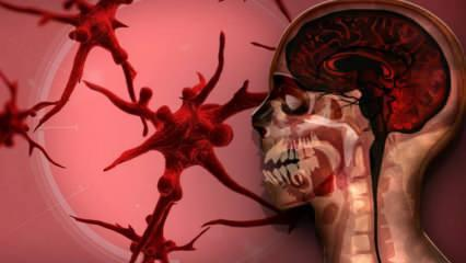 Veba hastalığı nedir nasıl bulaşır? Veba hastalığının belirtileri nelerdir? Vebanın tedavisi..