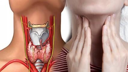 Haşimato hastalığı nedir? Haşimatonun belirtileri nelerdir? Haşimatonun tedavisi var mı?
