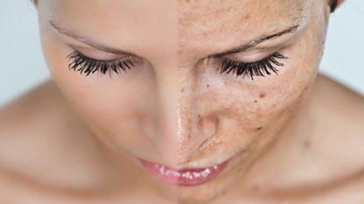 Candice Swanepoel'den cildi nemlendiren maske tarifi 81